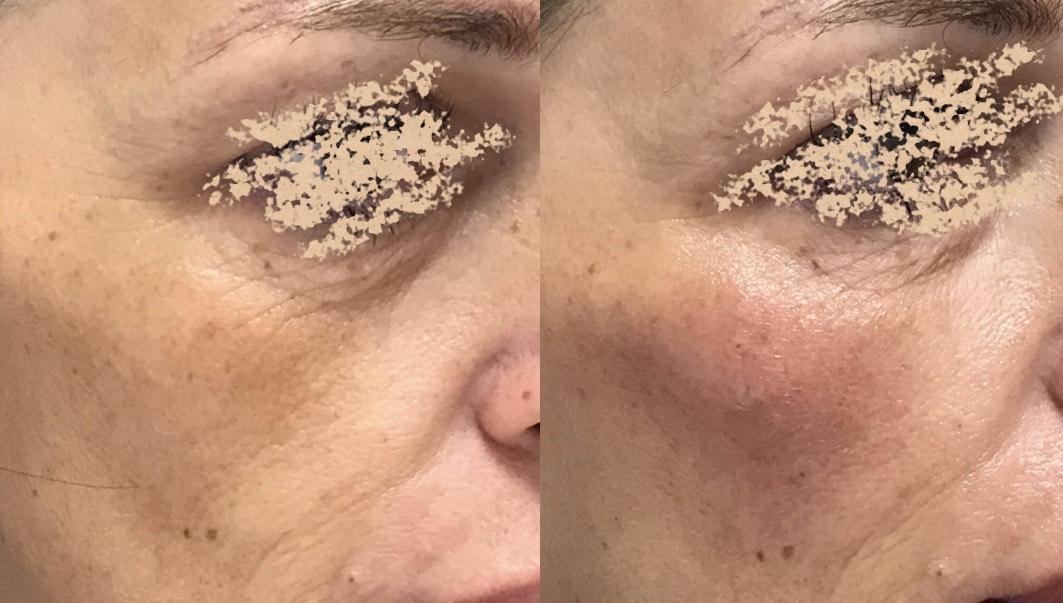 Z dermalnimi polnili s hialuronsko kislino nadomestimo izgubo volumna v predelu lic in s tem pomladimo videz.