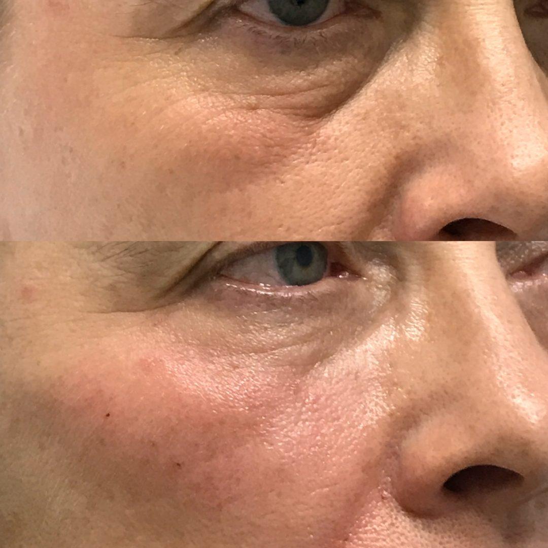 Zmanjšanje podočnjaka z nadomeščanjem volumna z dermalnimi polnili s hialuronsko kislino.