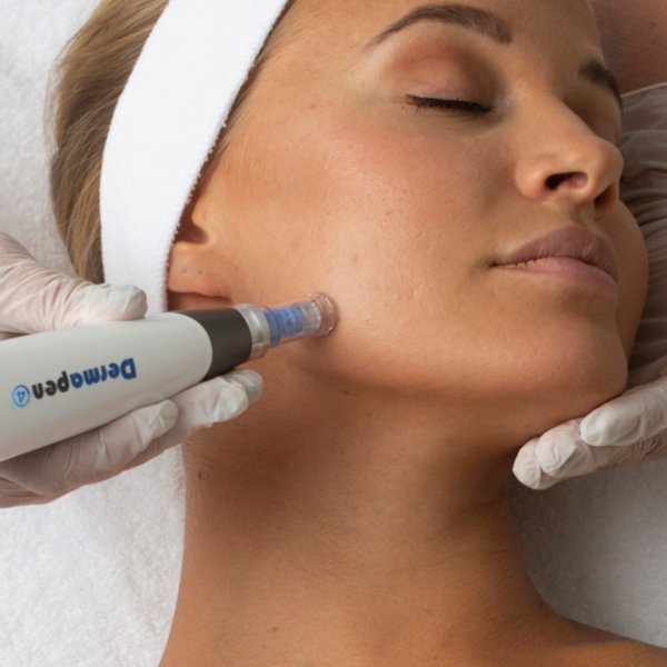Dermapen 4 deluje tako, da z mikroiglicami doseže mikropoškodbe kože, s katerimi spodbudi njeno obnovo.