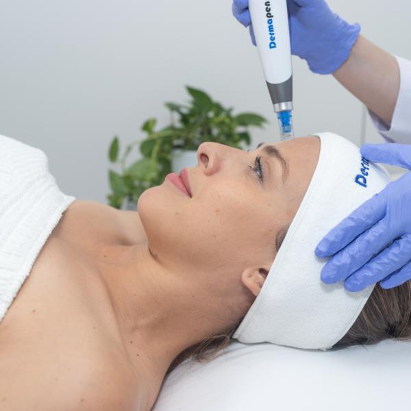 Dermapen 4 microneedling terapija je popolna nega za kožo obraza, ki se sooča z izzivi današnjega načina življenja, ki ga zaznamujejo pospešen tempo življenja, stres in zunanji dejavniki.