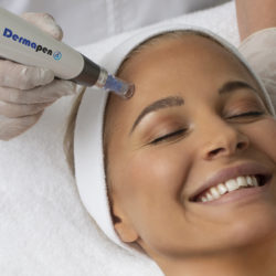 Microneedling estetski postopek, pri katerem s posebno napravo ustvarjamo drobne vbode v koži.
