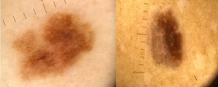 Dermatoskopska slika melanoma v nivoju kože, za katerega je potrebna kirurška odstranitev.