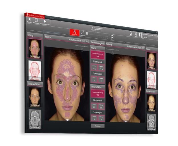Digitalni pregled kožnih znamenj z napravo FotoFinder ATBM - primer pregleda obraza.