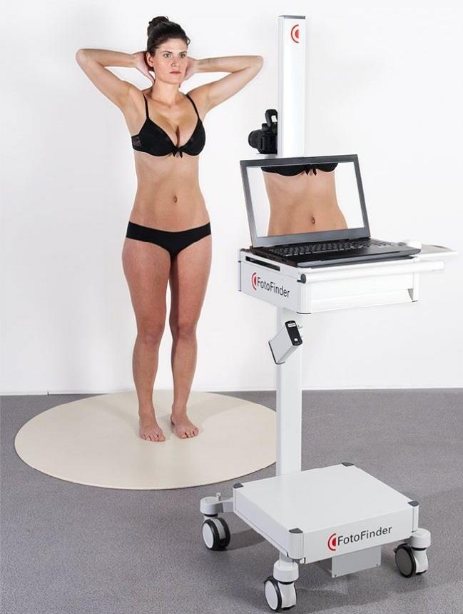 FotoFinder samodejno skenira kožo z vseh štirih strani in zdravnika takoj opozori na morebitne spremembe na koži.
