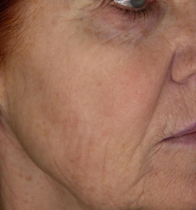 Fotopomlajevanje s sistemom Nordlys SWT: videz obraza po posegu.