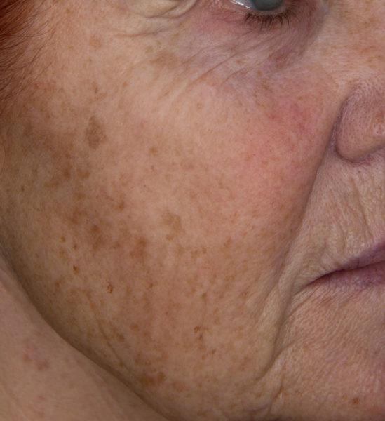 Fotopomlajevanje obraza s sistemom Nordlys SWT: rezultat pred posegom.