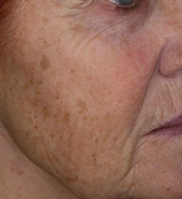 Odstranjevanje hiperpigmentacij s sistemom Nordlys SWT: videz obraza pred posegom.