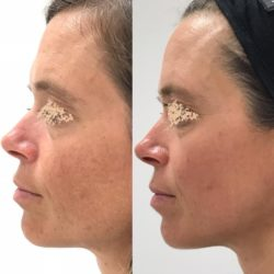 S tretmajem iLumi4 dosežemo globinsko in površinsko obnovo kože.