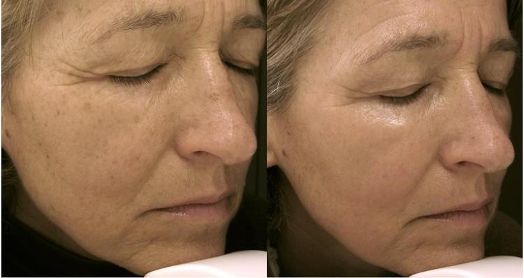 Lasersko odstranjevanje hiperpigmentacij: videz obraza pred tretmajem in po njem.