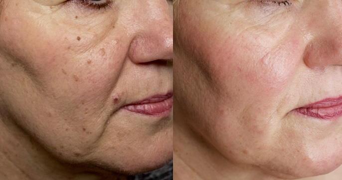 Lasersko odstranjevanje hiperpigmentacij: prej - potem.