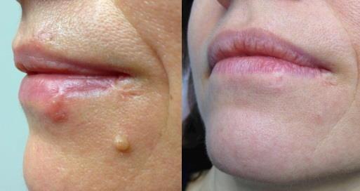 Lasersko odstranjevanje kožnih znamenj in izrastkov - odstranitev benignega kožnega znamenja.