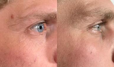 Lasersko odstranjevanje kožnih znamenj - odstranitev dermalnega melanocitnega nevusa.