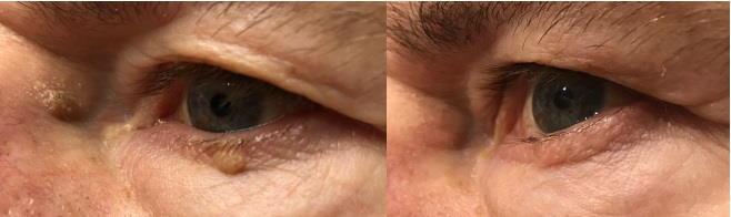 Lasersko odstranjevanje kožnih znamenj - laserska odstranitev seboroične keratoze.