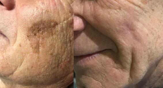 Lasersko odstranjevanje kožnih znamenj: prej - potem.