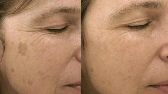 Lasersko odstranjevanje kožnih znamenj - laserska odstranitev solarnega lentiga.