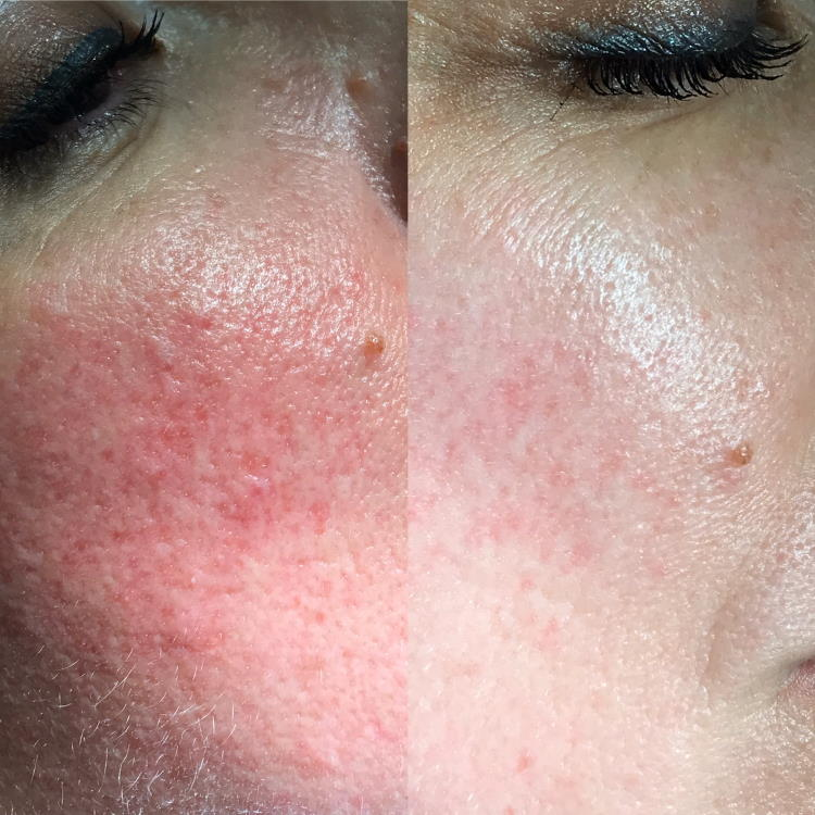 Lasersko zdravljenje rdečice rozacee na obrazu: videz pred laserskim tretmajem in rezultat po njem.
