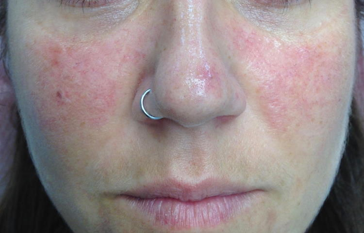 Lasersko zdravljenje rdečice rozacee na obrazu: videz pred laserskim tretmajem.