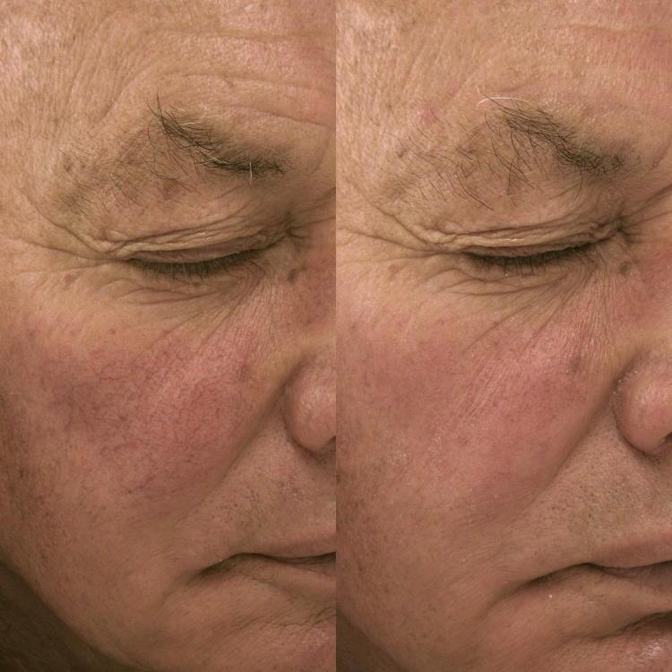 Lasersko zdravljenje rozacee (rdečice) na obrazu: prej - potem.