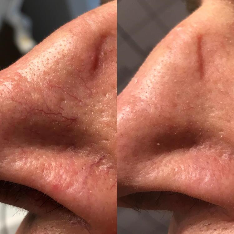 Lasersko zdravljenje razširjenih žilic na nosu: prej - potem.