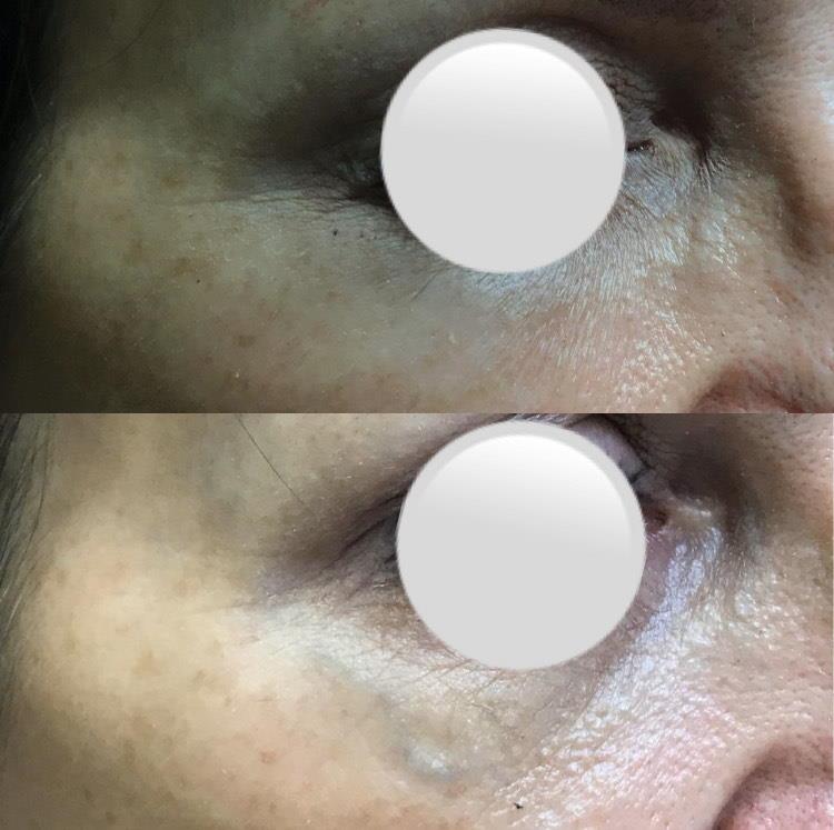 Lasersko zdravljenje vene na obrazu: prej - potem.