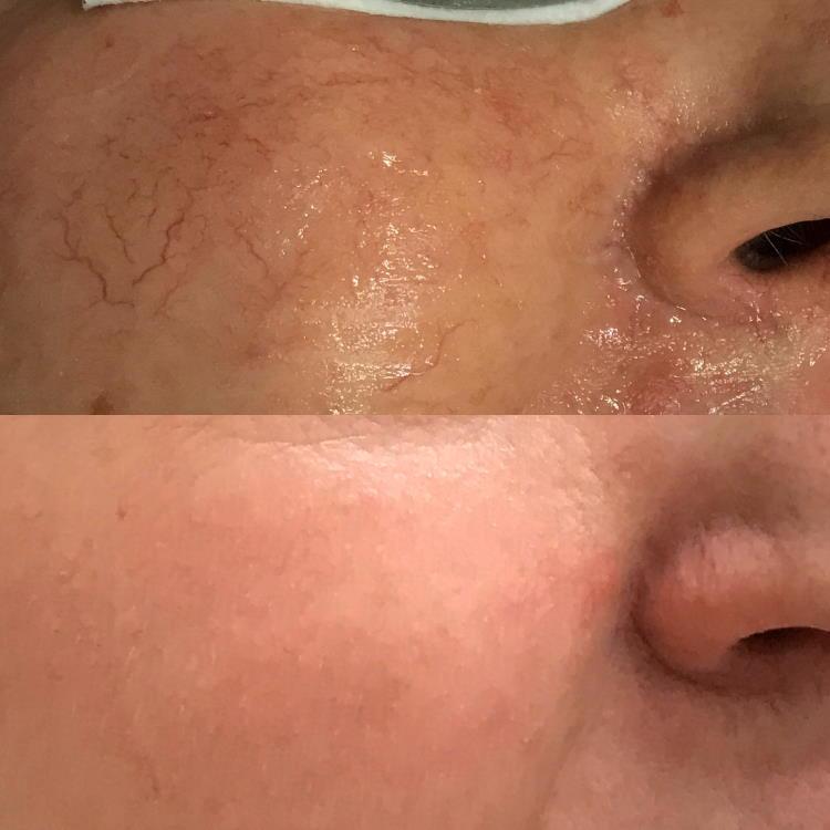 Lasersko zdravljenje žilic na obrazu: prej - potem.