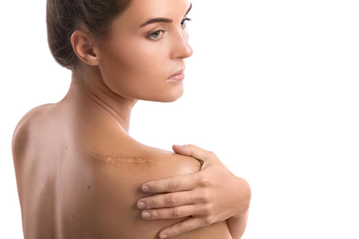 Kirurško odstranjevanje brazgotin se običajno izvede vsaj pol leta po poškodbi kože.