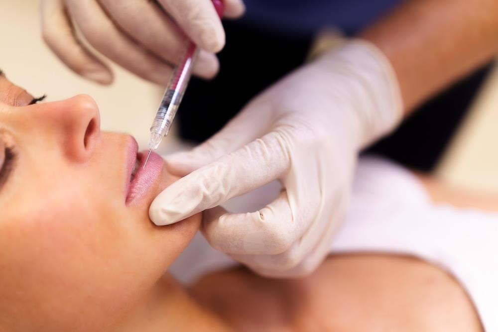 Za povečanje in preoblikovanje ustnic, da ta obdržijo naraven izgled, so najprimernejša mehka polnila s hialuronsko kislino.