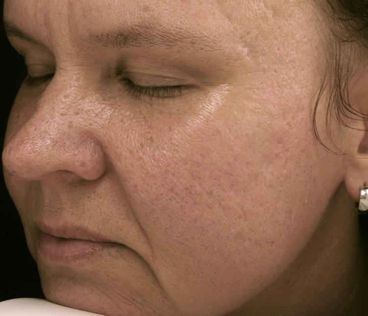 Lasersko zdravljenje aken - izgled kože obraza po tretmaju.