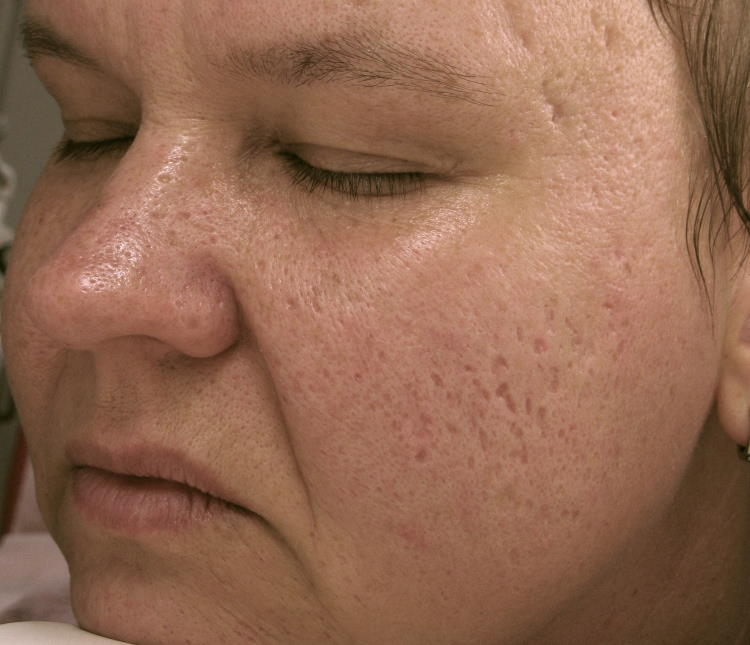Lasersko zdravljenje aken - izgled kože obraza pred tretmajem.