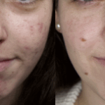 Lasersko zdravljenje brazgotin po aknah: prej - potem.